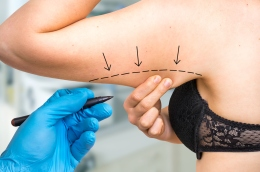 Plastic-surgery-doctor-draw-line-on-patient-arm-1026563480_4912x3264.jpg