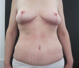 Post operative tummy tuck, mastopexy and armlift with Ms Angelica Kavouni