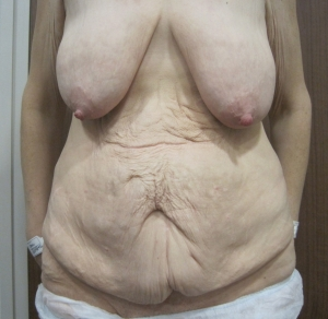 Weight loss. Pre operative tummy tuck, breast uplift and armlift