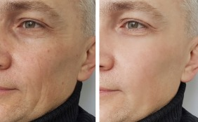 man-wrinkles-before-and-after-picture-id918073280